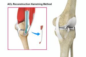 ACL Reconstruction Procedure with Hamstring Tendon