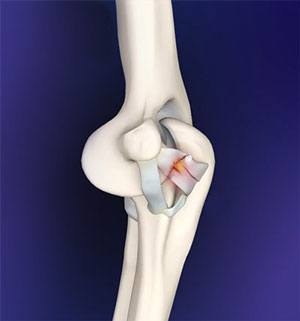 Elbow Ligament Reconstruction